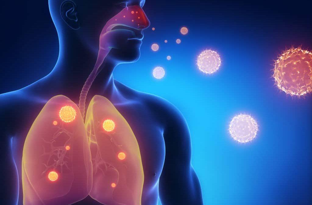 Пять тысяч человек заболели пневмонией в Иркутской области с марта