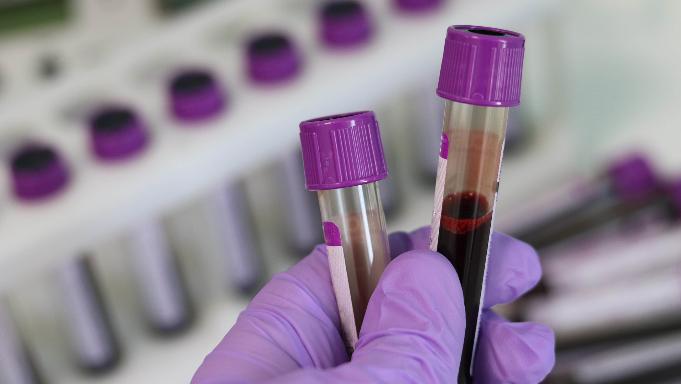 Иркутская область попала в топ опасного рейтинга по ВИЧ.